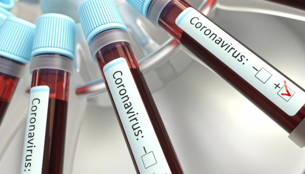 Жители ДНР с пневмониями и подозрением на COVID-19 смогут бесплатно сдать тесты на дому – Минздрав